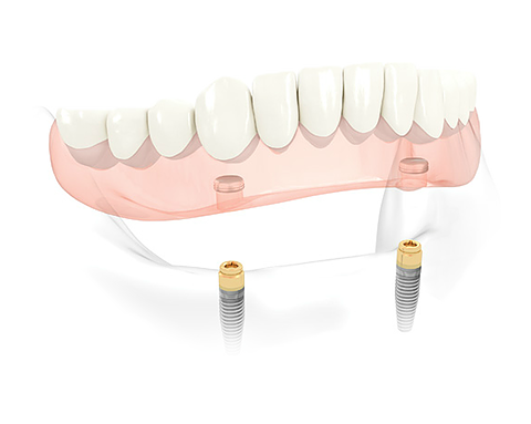 SUPPORTED-DENTURES